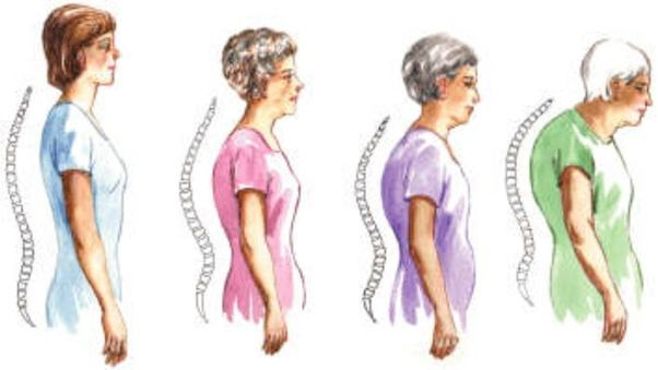 aging-and-body-back-deformation-in-grown-and-aging-people