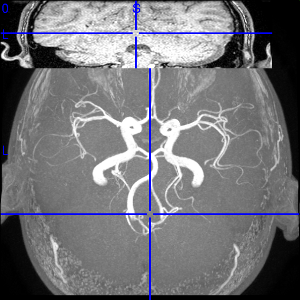 RMI hip0 Brain from Above