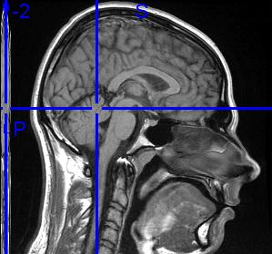 RMI scan of hip0 brain